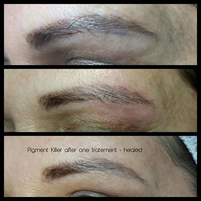 Augenbraue mit dem Pigment Killer gearbeitet - direkt nach der Behandlung & abgeheilt