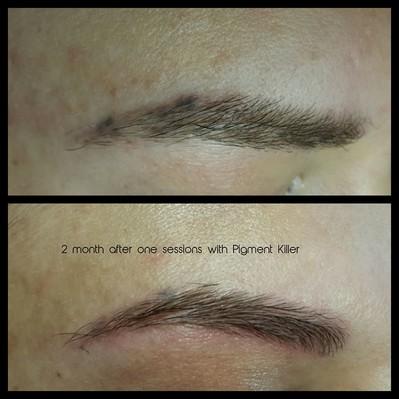 Augenbrauen - gearbeitet mit dem Pigment Killer - abgeheilt nach 2 Monaten