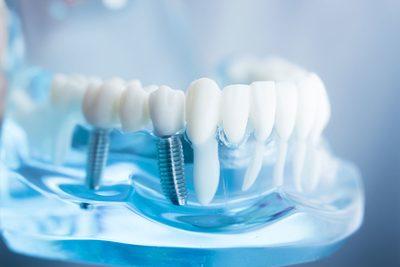 Zahnimplantate Zahnarzt Aal Wipperfürth Dentaal